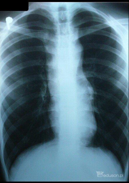 RTG klatki piersiowej zwidocznym poszerzonym cieniem śródpiersia