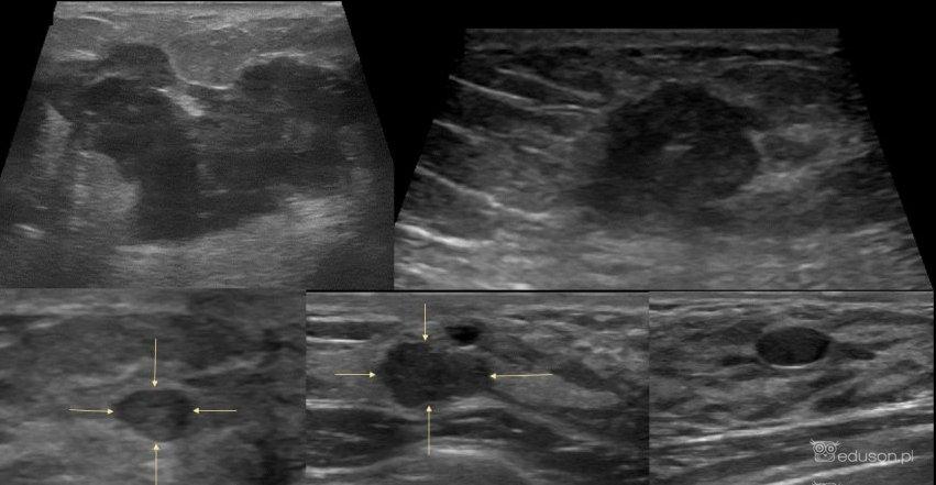 BIRADS-usg. Dalsze postępowanie w pytaniach i odpowiedziach. - Portal wymiany wiedzy o ultrasonografii - Eduson
