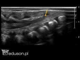 13 pytań z anatomii ultrasonograficznej OUN - sprawdź swoją wiedzę. - Portal wymiany wiedzy o ultrasonografii - Eduson