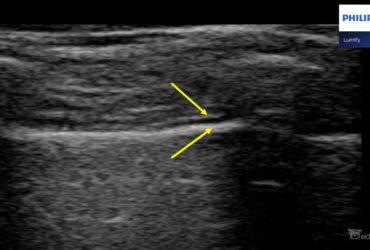Liniowa czy konweksowa – którą głowicę wybrać do obrazowania płuc? - Portal wymiany wiedzy o ultrasonografii - Eduson