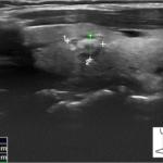 Choroba Hashimoto - kontrolne badanie usg - Portal wymiany wiedzy o ultrasonografii - Eduson