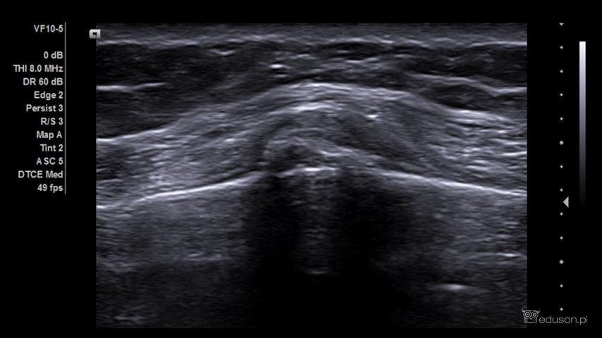 zagadka ultrasonograficzna