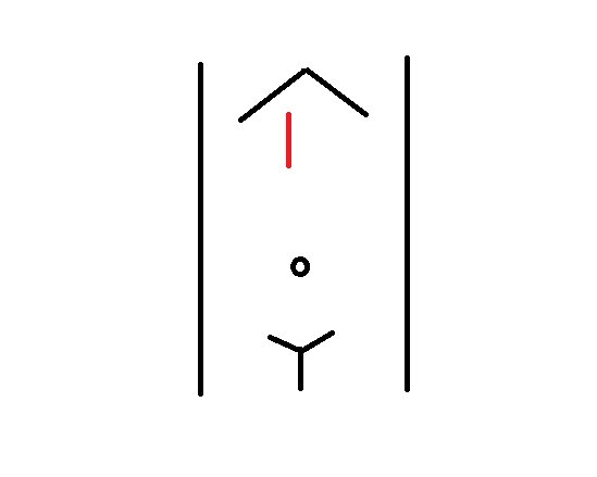 obraz ultasongraficzny utego samego chorego podokonaniu zwrotu głowicy o90 stopni. Brzusznie odaorty (bliżej czoła głowicy) widoczne są patologiczne węzły chłonne, nieprawidłowego kształtu (okrągłe).
