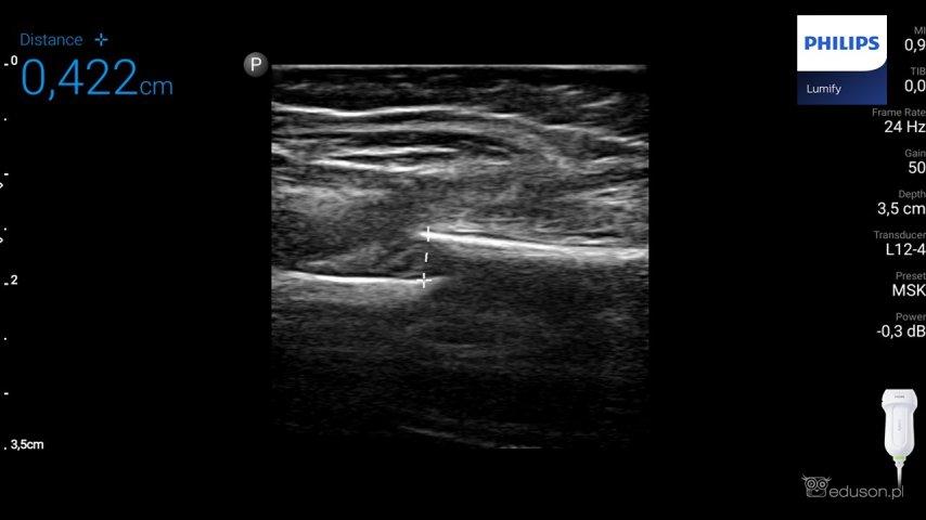 Pomiar wielkości uskoku wmiejscu złamania kości udowej. Głowica liniowa. Philips Lumify. Obraz ultrasonograficzny.