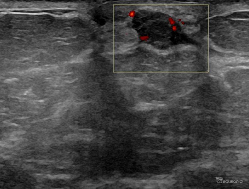 Który to BIRADS-usg? - Portal wymiany wiedzy o ultrasonografii - Eduson