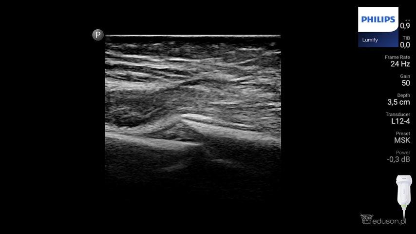 Widoczny uskok warstwy korowej kości wmiejscu złamania, obraz ultrasonograficzny