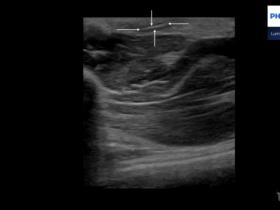 26-letnia córka leśniczego... - Portal wymiany wiedzy o ultrasonografii - Eduson