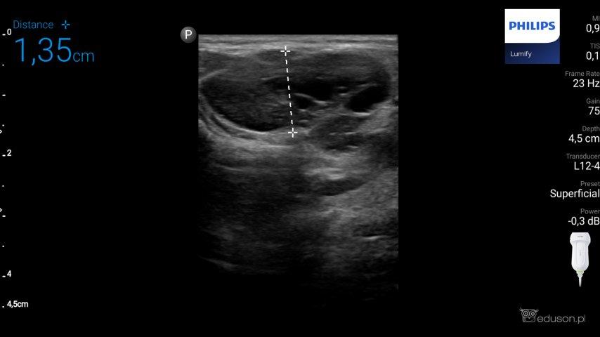 Zdjęcie 2. Głowica liniowa PHILIPS LUMIFY. Pomiar zmiany guza Castlemana prawej ślinianki przyusznej u12-letniego chłopca.