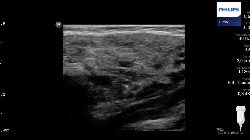 Ślinianka - obraz ultrasonograficzny. Ślinianka przyuszna pacjenta zpierwotnym zespołem Sjogrena. Tylny zarys ślinianki onierównym brzegu. Badanie wykonano głowicą liniową Philips Lumify.