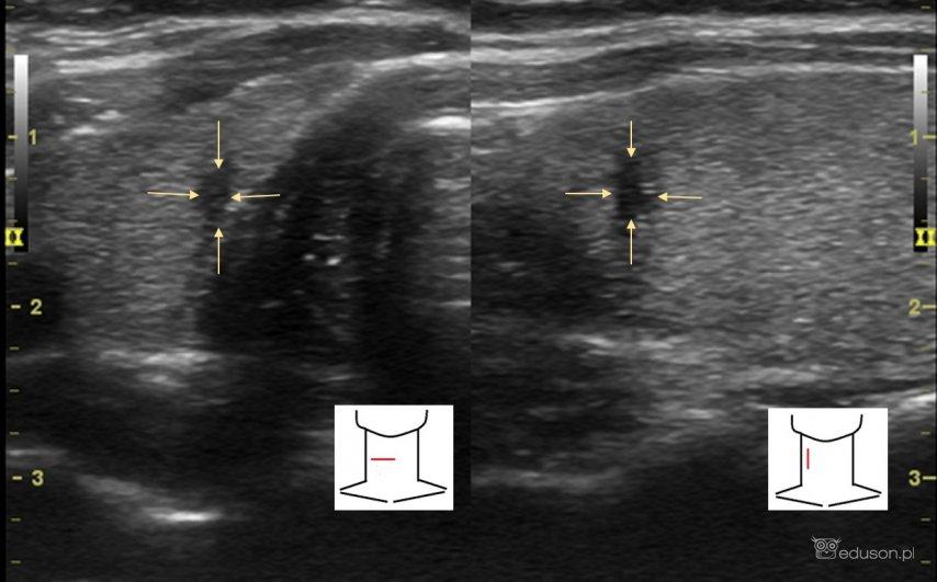 Jaki to TIRADS? - Portal wymiany wiedzy o ultrasonografii - Eduson