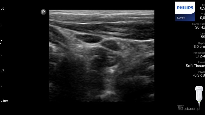 Dwa prawidłowe węzły chłonne położone wsąsiedztwie mięśnia MOS. Echogeniczność węzłów chłonnych jest zbliżona doechogeniczności mięśnia. Głowica liniowa. Philips Lumify.
