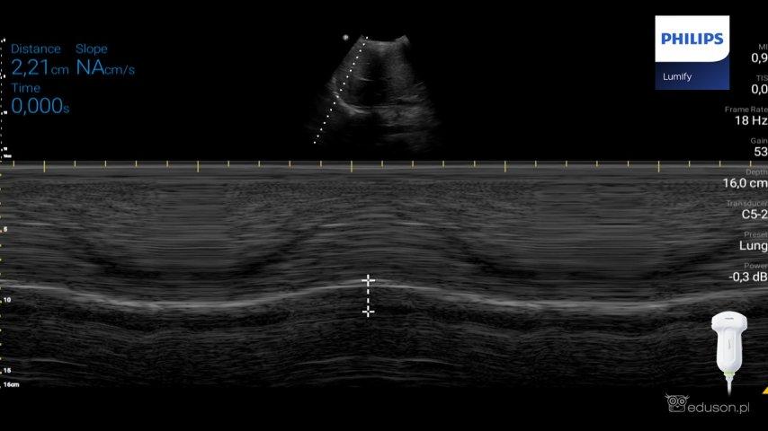 Pomiar głębokości ruchu prawej kopuły przepony podczas spontanicznego oddechu pacjenta. Głowica konweksowa Philips Lumify przyłożona doprawej linii pachowej, włączony tryb M-mode. Znacznik trybu M-mode skierowany wstronę szczytu kopuły przepony.