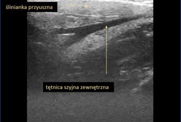 ślinianki - Portal wymiany wiedzy o ultrasonografii - Eduson