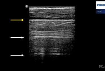 Pacjent z podejrzeniem COVID-19. Praktyczne aspekty badania usg płuc. - Portal wymiany wiedzy o ultrasonografii - Eduson