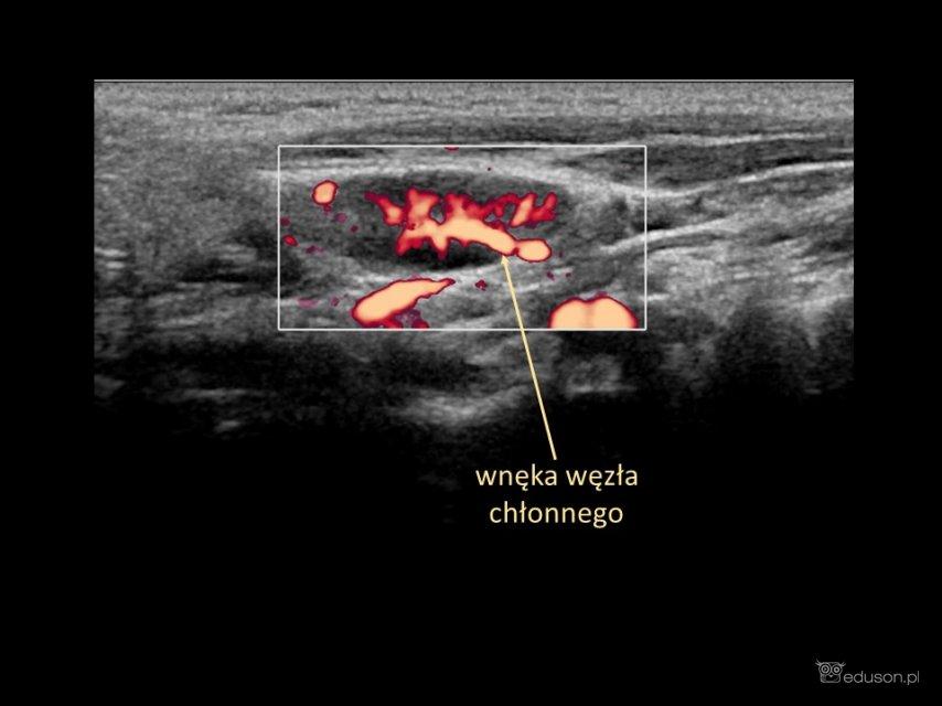 węzły chłonne - Portal wymiany wiedzy o ultrasonografii - Eduson