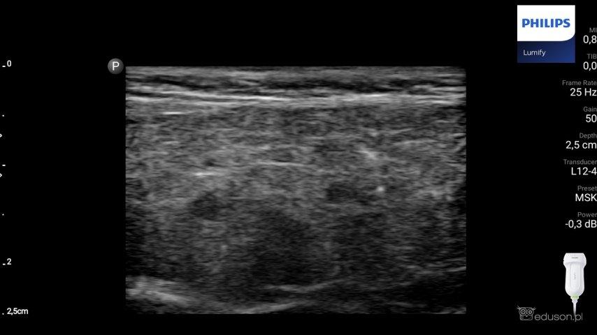Obraz ślinianki pacjenta zwtórnym zespołem Sjogrena. Obraz ślinianki pacjenta zwtórnym zespołem Sjogrena. Widoczne mniejsze nasilenie zmian echogeniczności miąższu wporównaniu zpierwotnym zespołem Sjogrena. Badanie wykonano głowicą liniową Philips Lumify.