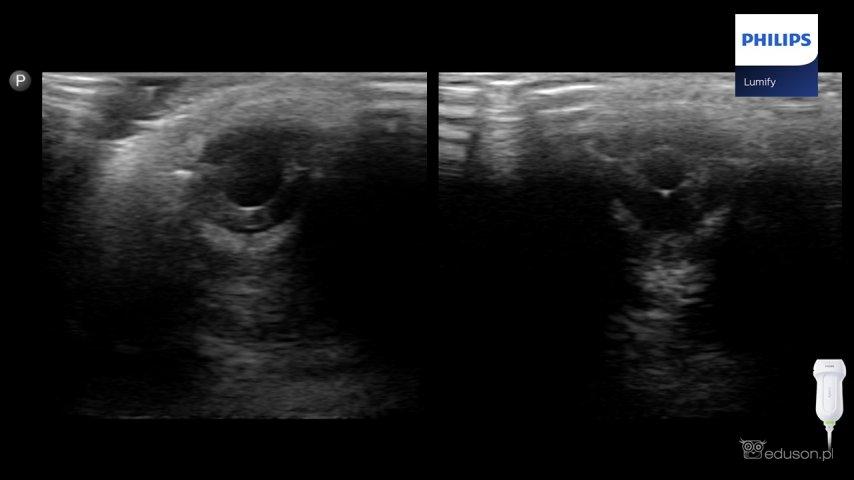 Obraz rozszerzonej izwężonej źrenicy oka widoczny wbadaniu usg. Głowica liniowa Philips Lumify.