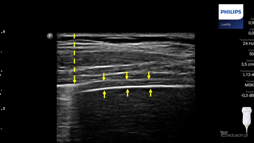 Głowica liniowa Philips Lumify. Obrazowanie części żebrowej mięśnia przepony. Mięsień przepony jest widoczny jako hipoechogeniczna warstwa zlokalizowana między żółtymi strzałkami. Granicę płuca oznaczono przerywaną strzałką.
