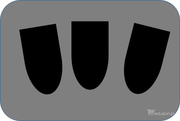 Obrazy ultrasonograficzne: piramidy nerkowe bezechowe