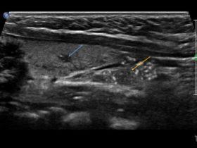 Dlaczego mój pacjent ma niedoczynność tarczycy? - Portal wymiany wiedzy o ultrasonografii - Eduson