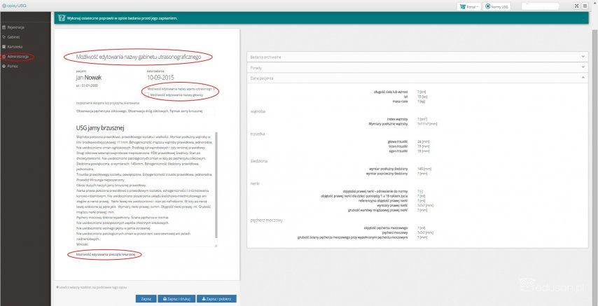 Eduson - Opisy USG - własny szablon opisu