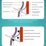 Czy Twój pacjent ma przepuklinę pachwinową? Chwyć za głowicę i sprawdź sam! - Portal wymiany wiedzy o ultrasonografii - Eduson