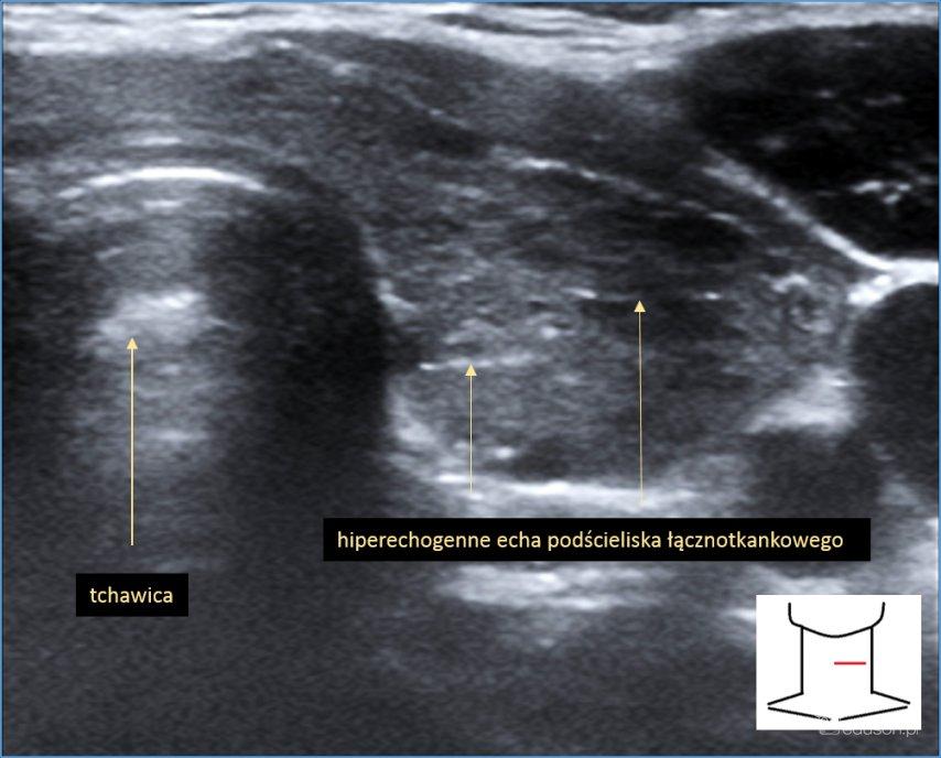 autoimmunologiczne zapalenie tarczycy, niejednorodna (zatarta) echostruktura