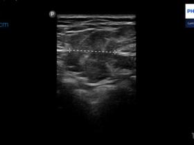 Guz w ścianie jamy brzusznej lub klatki piersiowej. Spektrum obrazów ultrasonograficznych. - Portal wymiany wiedzy o ultrasonografii - Eduson