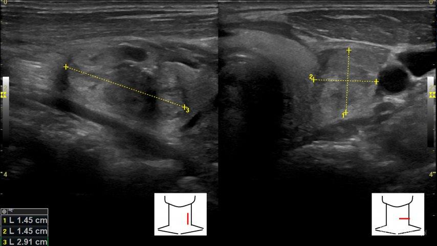 Zakrzepica żyły szyjnej wewnętrznej - Portal wymiany wiedzy o ultrasonografii - Eduson