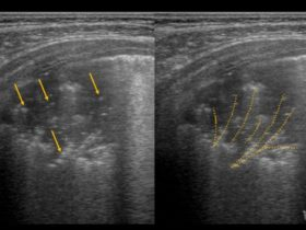 Czy mogę osłuchać płuca pani syna głowicą ultrasonograficzną? - Portal wymiany wiedzy o ultrasonografii - Eduson
