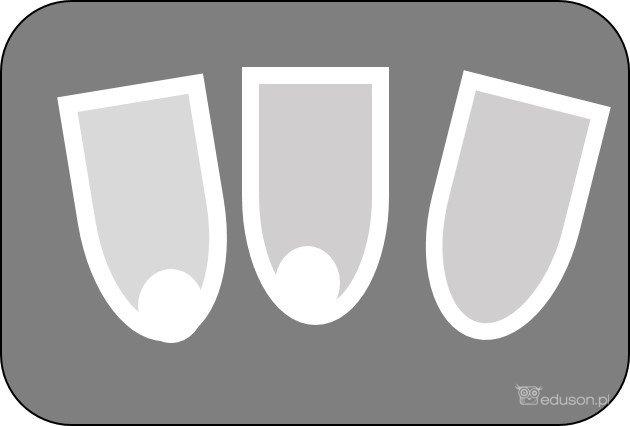 Obrazy ultrasonograficzne: podwyższenie echogeniczności piramid, awnastępnie wokolicy brodawek nerkowych formują się złogi