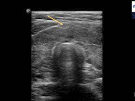 Choroba Hashimoto u dziecka - Portal wymiany wiedzy o ultrasonografii - Eduson