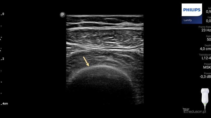 Rola USG we wstępnej diagnostyce złamań kości długich - Portal wymiany wiedzy o ultrasonografii - Eduson