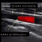 doppler w USG - Portal wymiany wiedzy o ultrasonografii - Eduson
