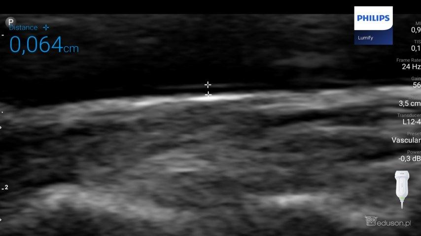 Zdjęcie 4. Głowica liniowa PHILIPS LUMIFY. Preset vascular. Pomiar kompleksu błony środkowej Iwewnętrznej tętnicy szyjnej u36-letniego zdrowego mężczyzny.