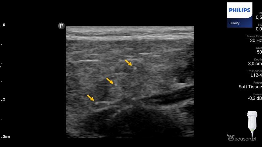 Zespół Sjogrena – obraz ultrasonograficzny ślinianek - Portal wymiany wiedzy o ultrasonografii - Eduson