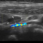 Węzły chłonne krezkowe - Portal wymiany wiedzy o ultrasonografii - Eduson