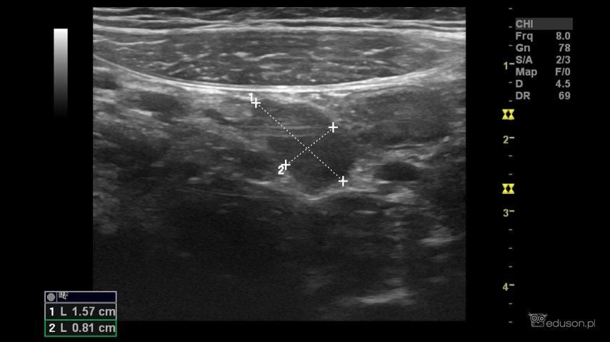 Węzeł chłonny krezkowy wokolicy krętniczo-kątniczej u7-letniej dziewczynki bezdolegliwości bólowych brzucha.  USG jama brzuszna.