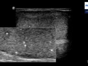 Mikrolitiaza jąder - Portal wymiany wiedzy o ultrasonografii - Eduson
