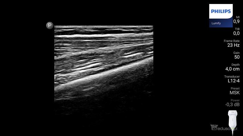 Prawa kość udowa wprzekroju podłużnym. Widoczna zachowana ciągłość warstwy korowej. Głowica liniowa. Philips Lumify. Obraz ultrasonograficzny