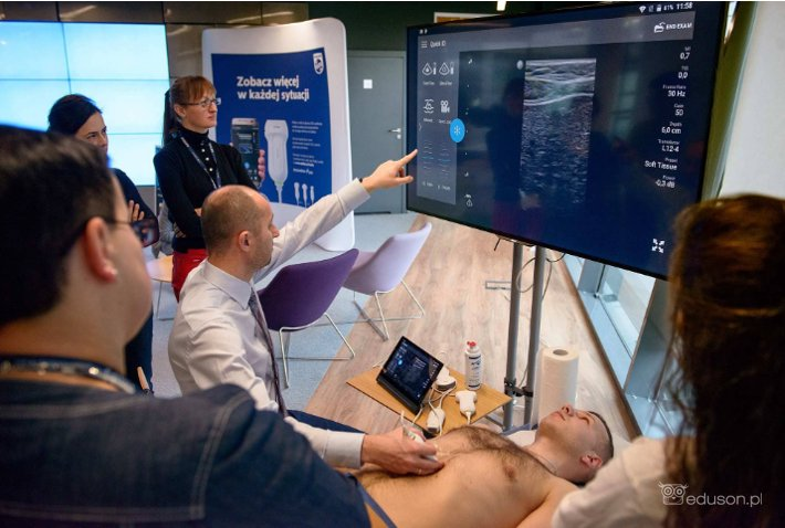 22-23 lutego zapraszamy do Warszawy na wyjątkowy kurs ultrasonografii PHILIPS LUMIFY - Portal wymiany wiedzy o ultrasonografii - Eduson