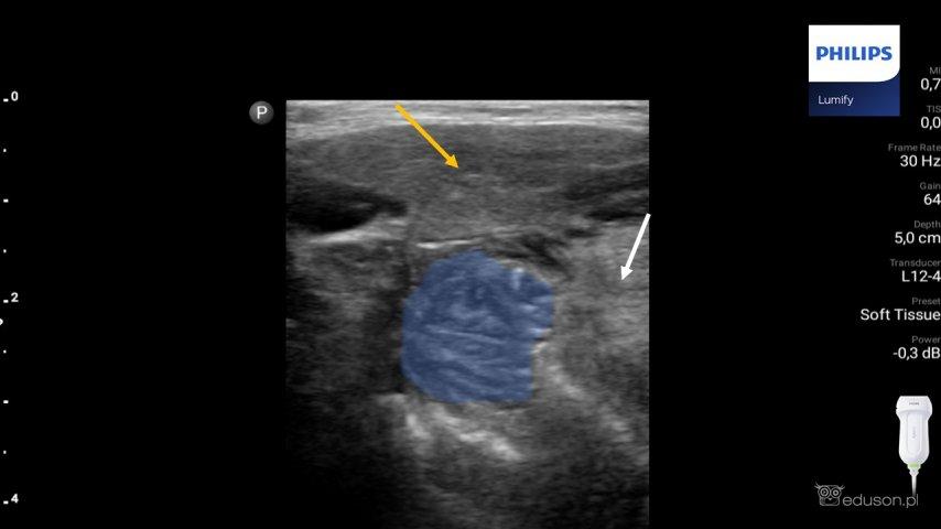 Na obrazie ultrasonograficznym prawy migdałek podniebienny (obrysowany niebieskim kolorem). Żółtą strzałką oznaczono śliniankę podżuchwową, białą strzałką oznaczono język. Głowica liniowa. Philips Lumify.