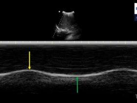 Jaką głowicę ultrasonograficzną wybrać do obrazowania przepony? - Portal wymiany wiedzy o ultrasonografii - Eduson