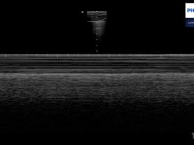 Pacjent z dusznością i głowica PHILIPS LUMIFY - Portal wymiany wiedzy o ultrasonografii - Eduson