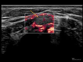 Czy zaznaczona struktura uwidoczniona podczas usg szyi wymaga dalszej diagnostyki? - Portal wymiany wiedzy o ultrasonografii - Eduson