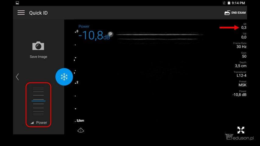 """Po aktywacji panelu bocznego waparacie Philips Lumify możliwe jest obniżenie mocy akustycznej zapomocą suwaka """"power'. Dooceny ultrasonograficznej gałki ocznej zaleca się, byindeks mechaniczny (MI) nieprzekraczał wartości 0,3 (czerwona strzałka)."""