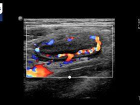 Wrzodziejące zapalenie jelita grubego - Portal wymiany wiedzy o ultrasonografii - Eduson