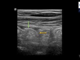Jak znaleźć wyrostek robaczkowy? - Portal wymiany wiedzy o ultrasonografii - Eduson