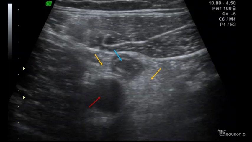 Zerknie Pan tylko, czy to nie wyrostek, bo my na weekend chcemy wyjechać... - Portal wymiany wiedzy o ultrasonografii - Eduson