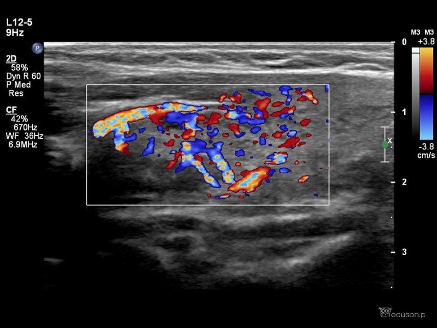 Pacjentka ze zmianą w okolicy cieśni tarczycy - Portal wymiany wiedzy o ultrasonografii - Eduson